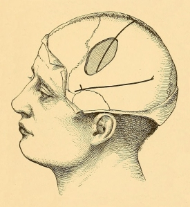 """Image from page 60 of """"Brain surgery"""" (1893)"""